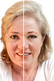 Wrinkled or smooth skin. Fifty-something woman considering wrinkle-removal and skin rejuvenation royalty free stock image