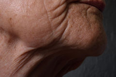 Wrinkles Stock Photos