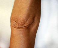 Wrinkles and creases on his elbow. Old wrinkled elbow Royalty Free Stock Photography