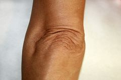 Wrinkles and creases on his elbow. Old wrinkled elbow Stock Photos