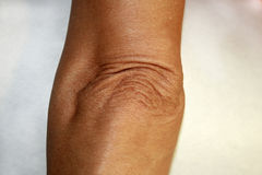 Wrinkles and creases on his elbow. Old wrinkled elbow Stock Photography