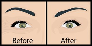 Wrinkles and fine lines under eyes to remove. Before and After. Eyes lifting. Vector illustration Royalty Free Stock Photos