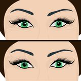Wrinkles and fine lines under eyes to remove. Before and After. Eyes lifting. Vector illustration Stock Image