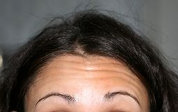 Wrinkles on the forehead. The forehead is flabby. Royalty Free Stock Photos