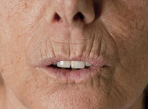 Wrinkle Lips Senior Wrinkles. Close up photo, showing the non retouched skin of a wrinkle senior lady, without make up. There are lots of wrinkles around her Stock Photos