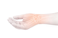 Wrist bones injury Stock Images