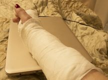 Wrist fracture, complete rest and no entertainment on the laptop stock photos
