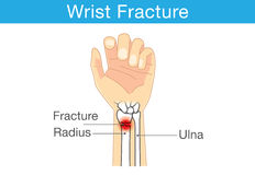 Wrist fracture Stock Image