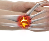 Wrist Fracture - Studio shot with 3D illustration isolated on wh Stock Photography