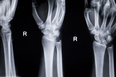 Wrist hand injury xray scan Royalty Free Stock Photography