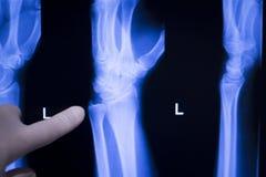 Wrist hand injury xray scan Stock Photo