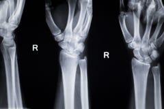Wrist hand injury xray scan Royalty Free Stock Photography