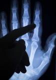 Wrist hand injury xray scan Royalty Free Stock Image