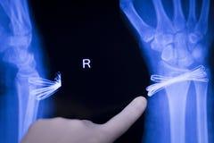 Wrist injury metal implant xray scan Royalty Free Stock Photography