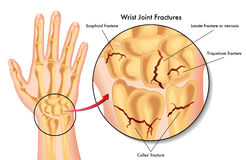 Wrist joint fractures Stock Photos