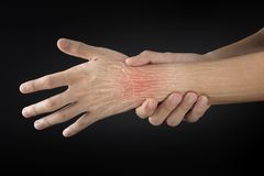Wrist muscle pain. Black background wrist pain royalty free stock photography