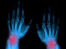 Wrist pain. Abstract x-ray image of wrist pain stock images