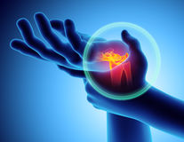 Wrist painful - skeleton x-ray. Wrist painful - skeleton x-ray, 3D Illustration medical concept Royalty Free Stock Photography