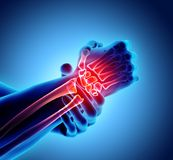 Wrist painful - skeleton x-ray. Wrist painful - skeleton x-ray, 3D Illustration medical concept Royalty Free Stock Images