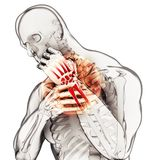 Wrist painful - skeleton x-ray. Stock Illustration