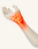 Wrist painful - skeleton x-ray. Royalty Free Stock Images