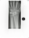 Wrist x-ray. An image of my wrist xray with a surgical inserted into one of the wrist bones royalty free stock image