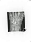 Wrist x-ray Royalty Free Stock Photography