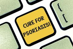 Writing note showing Cure For Psoriasis. Business photo showcasing Used alone creams and ointments that apply skin royalty free stock images