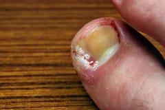 Wrośnięty toenail obrazy stock
