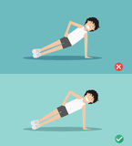 Wrong and right side plank plank posture,illustration Royalty Free Stock Image