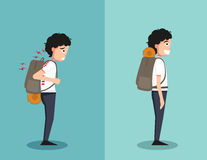 Wrong and right ways for backpack standing Royalty Free Stock Photos
