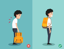 Wrong and right ways for backpack standing illustration Stock Images