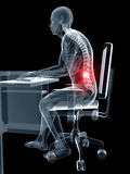 Wrong sitting posture Stock Photo