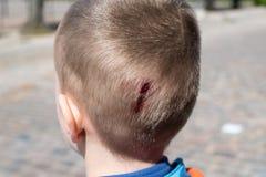 Wunde auf Kopfverletzung stockbilder