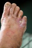 Wunde des zuckerkranken Fußes Lizenzfreie Stockfotografie