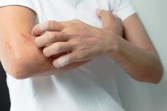 Wunden vom Verkratzen von Allergie, um Frauen zu bewaffnen Stockfotos