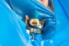 Wurzelbehandlung der Zahnnahaufnahme Reinigung der Wurzeln der Zähne und ihrer Füllung Das Konzept der modernen Technologie herei stockfotografie