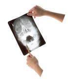 X射线学 库存图片