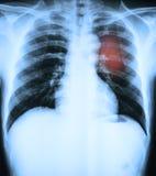 X射线辐射人一个医疗诊断的Ches tbones的图象 免版税库存照片