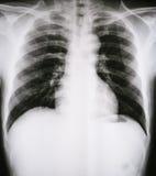 X射线辐射人一个医疗诊断的Ches tbones的图象 免版税库存图片