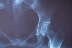 X射线辐射人的图象一个医疗诊断的 免版税库存照片