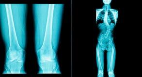 X射线辐射人的图象有一个长骨身体 免版税库存照片