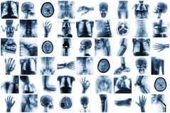 X射线辐射人的多个部门和许多健康状况和疾病 免版税库存图片