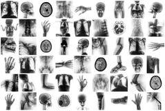 X射线辐射人的多个部门和许多健康状况和疾病 免版税库存照片