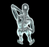 X射线辐射充满背部疼痛的图象人与裁减路线 向量例证