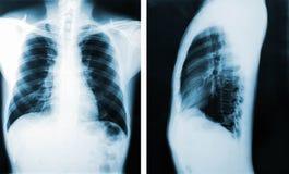 X射线辐射图象,观点的医疗诊断的胸口人 免版税库存图片