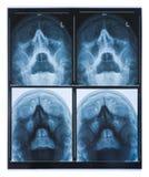 X射线辐射在白色背景隔绝的人的头骨的图象 免版税库存图片