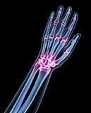 X射线辐射在黑色隔绝的一个人的图象 皇族释放例证