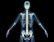 X射线辐射在黑色隔绝的一个人的图象 向量例证