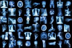 X射线辐射成人和孩子和疾病(肺结核冲程肾结石骨关节炎骨折肠的多个部门 免版税图库摄影